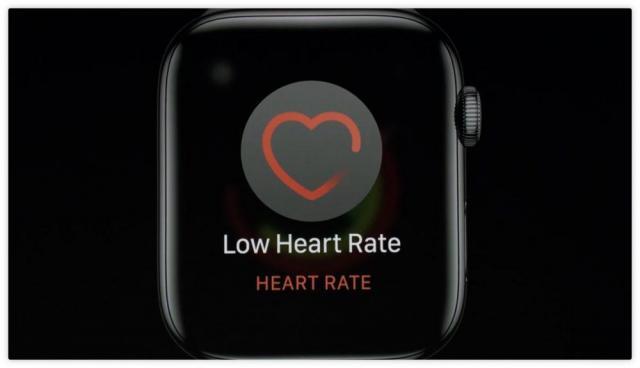 apple-watch-series-4-low-heart-rate-ecg-1000x574.thumb.jpg.96b36855d25d38668953055dbacf0f8b.jpg